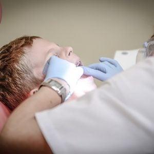 Vale a pena ter um plano de saúde odontológico?